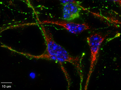 ADAR1 (red) in primary cortical neurons.